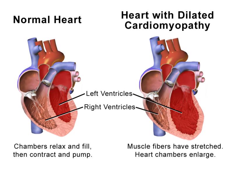 Blausen_0165_Cardiomyopathy_Dilated